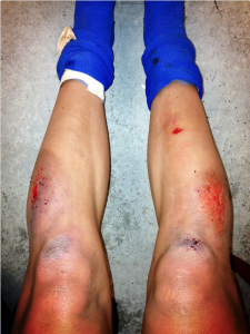 Leroux showing what turf can do to your legs